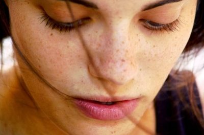 Best tips to get rid of freckles